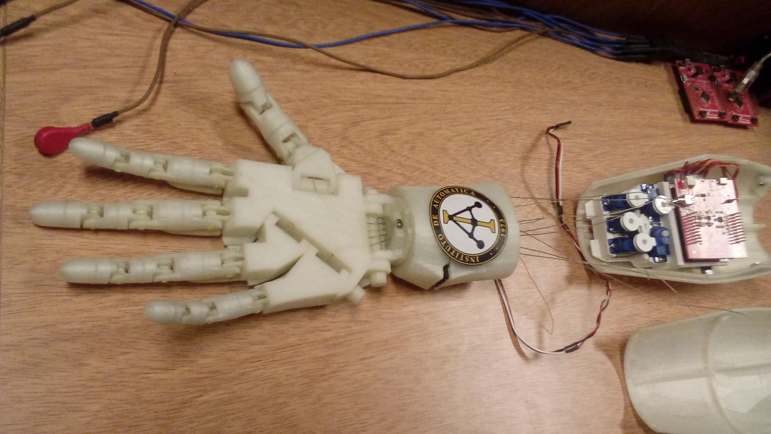 Una prótesis de mano que responde a las intenciones del usuario